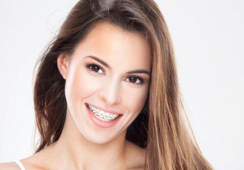 Niềng răng bao gồm những thành phần gì ?