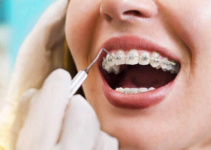 niềng răng bao lâu mới hết đau
