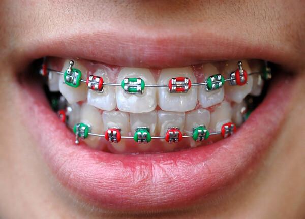 chăm sóc răng sau khi niềng răng