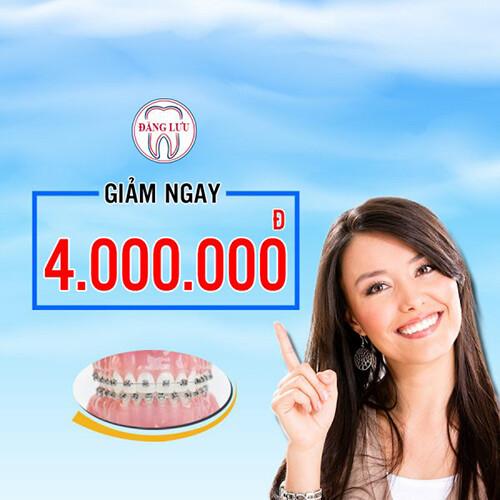 niềng răng chỉ 1 triệu