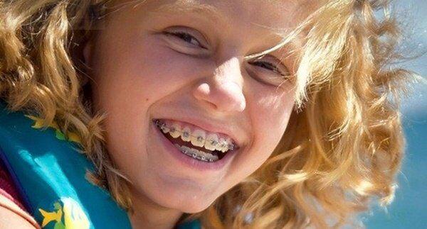 Niềng răng cho trẻ em giá bao nhiêu tiền?