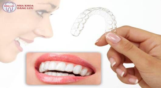 Niềng răng clear aligner có hơn niềng răng Invisalign không