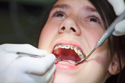 Niềng răng có ảnh hưởng đến việc mang thai không ?