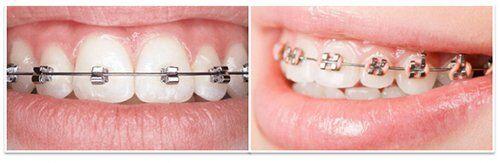 Niềng răng có đắt không?