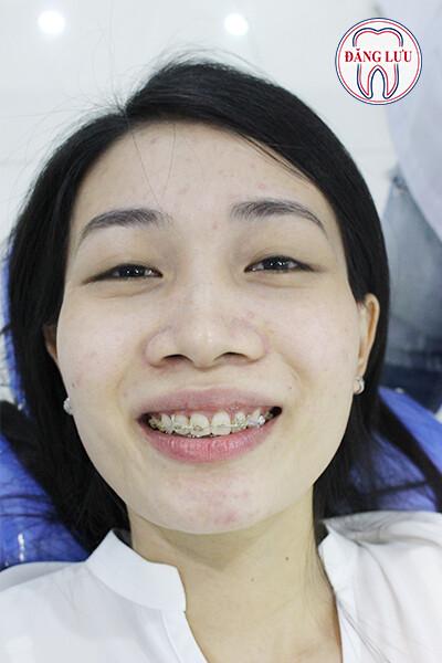 nieng-rang-co-gioi-han-tuoi-khong-1