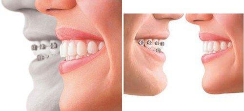 Lớn tuổi có niềng răng hô vẩu được không ?
