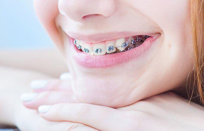 niềng răng cửa như thế nào?