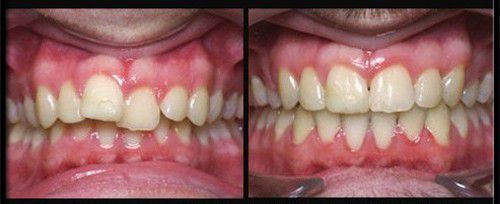 Niềng răng cửa thưa mọc lệch như thế nào?