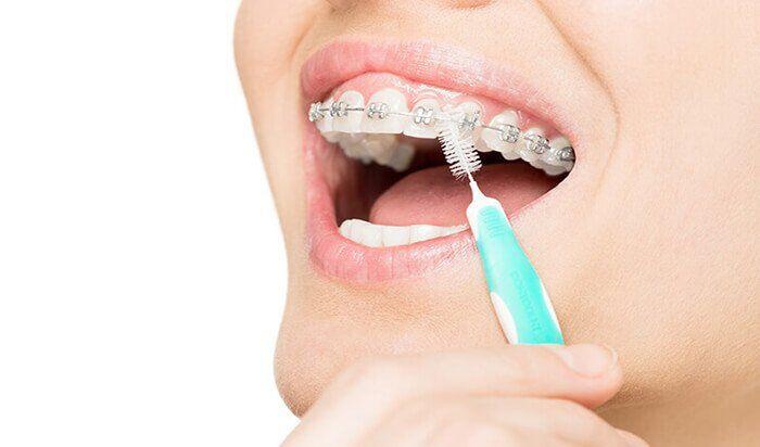 kỹ thuật niềng răng hô