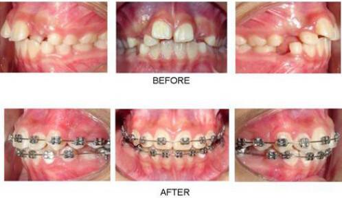 Tại sao phải niềng răng chỉnh nha