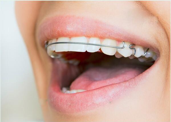 niềng răng hô hàm trên giá bao nhiêu tiền
