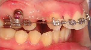 niềng răng hô hàm trên có được không?
