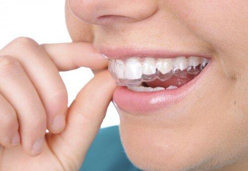 Niềng răng invisalign có phải nhổ răng