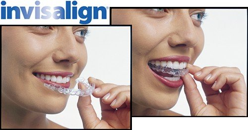 Niềng răng invisalign có tốt không?