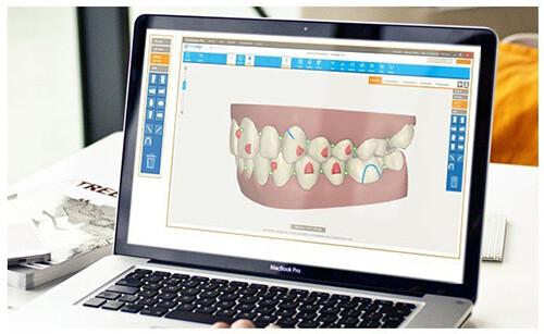 niềng răng invisalign G6 với chương trình 3d