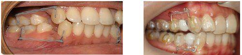 niềng răng invisalign G6