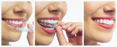 Niềng răng invisalign tại Việt Nam như thế nào ?