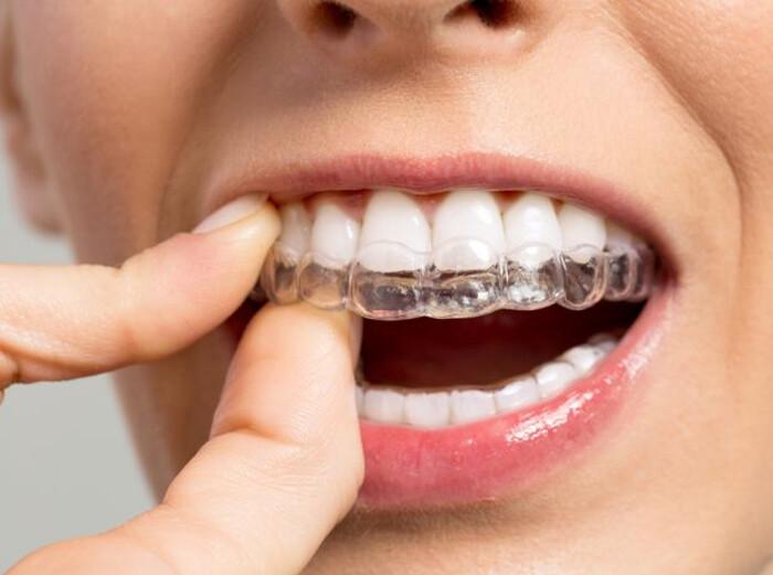 niềng răng Invisalign có đau không