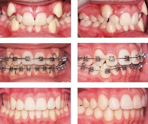 Niềng răng khấp khểnh mất bao lâu ?