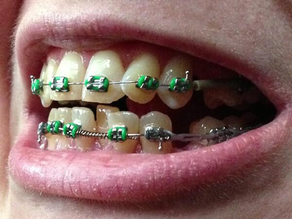 niềng răng cho răng khấp khểnh