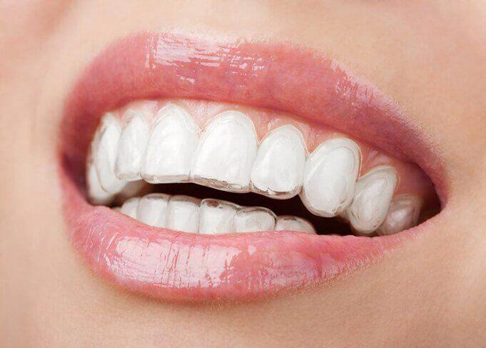 niềng răng bằng khay nhựa