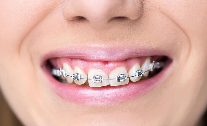 niềng răng khểnh như thế nào