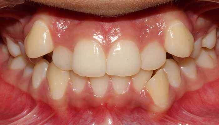 niềng răng khểnh mất bao lâu
