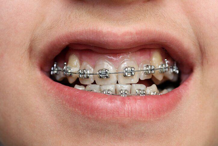 niềng răng khểnh bao lâu