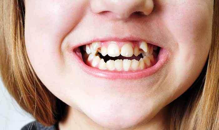niềng răng khểnh có cần nhổ răng không