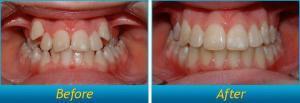 Niềng Răng Không Mắc Cài Và Nông Rộng Cung Răng