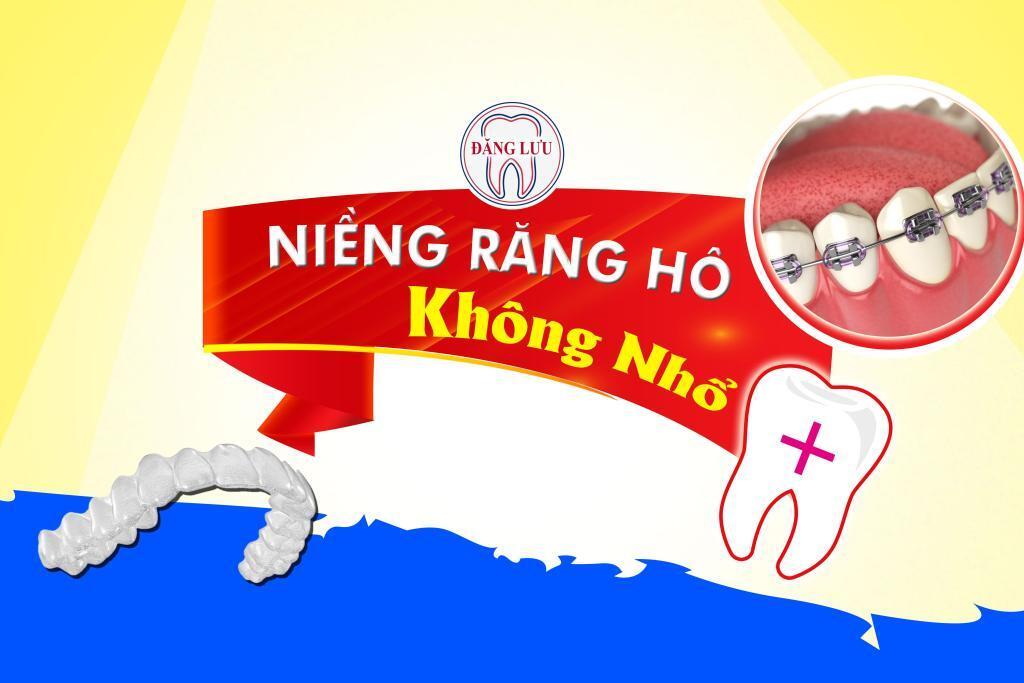 nieng-rang-khong-nho-rang-1