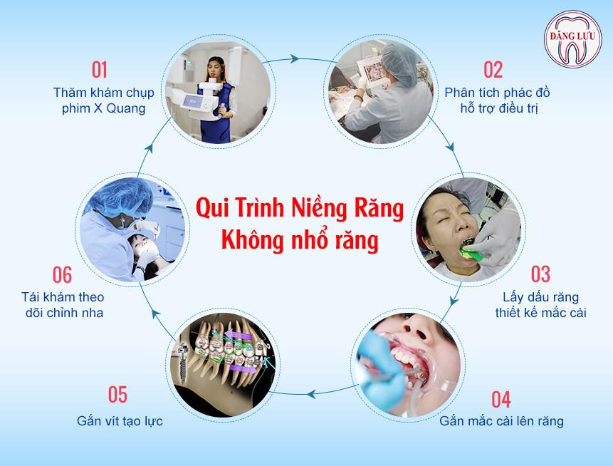 nieng-rang-khong-nho-rang-4