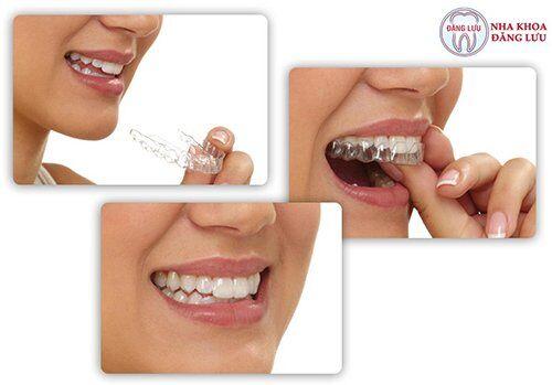 Niềng răng không nhổ răng có giúp giảm hô không