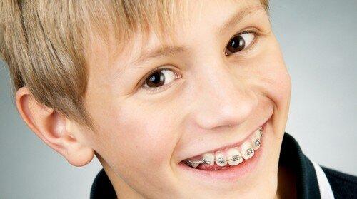Niềng răng không nhổ răng có tốt không
