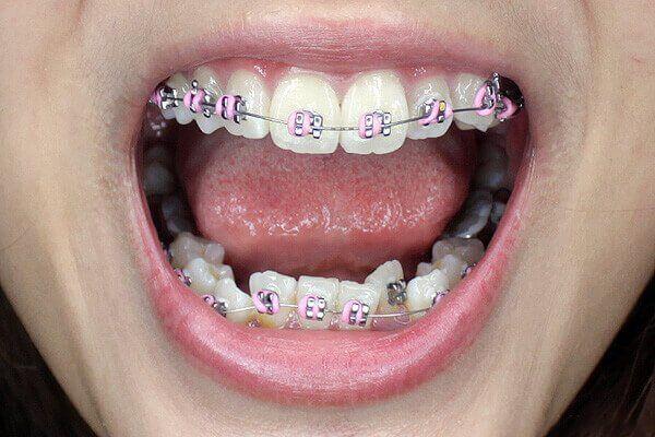 niềng răng lệch lạc bằng công nghệ cao