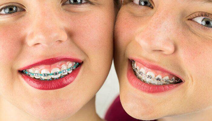 niềng răng loại nào tốt nhất