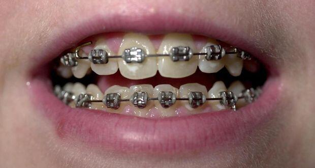 các loại mắc cài niềng răng thông dụng hiện nay
