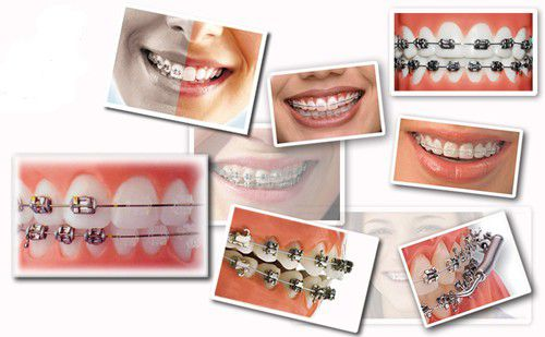 Nên niềng răng hay phẫu thuật để điều trị hô ?