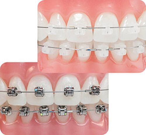 Niềng răng mắc cài sứ có phù hợp với trẻ em không?