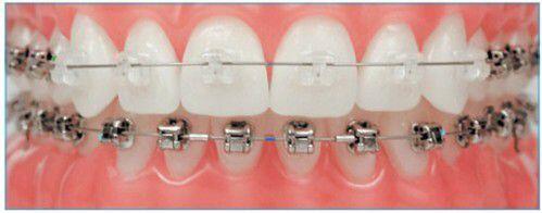 Niềng răng mắc cài sứ có phù hợp với trẻ em không ?