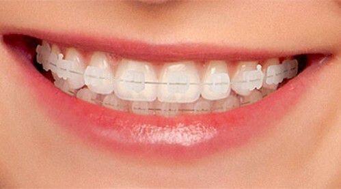 Niềng răng mắc cài trong suốt và khay niềng trong suốt