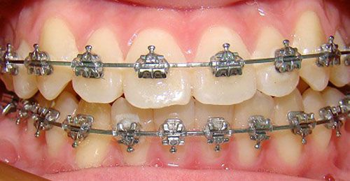 Niềng răng mắc cài kim loại