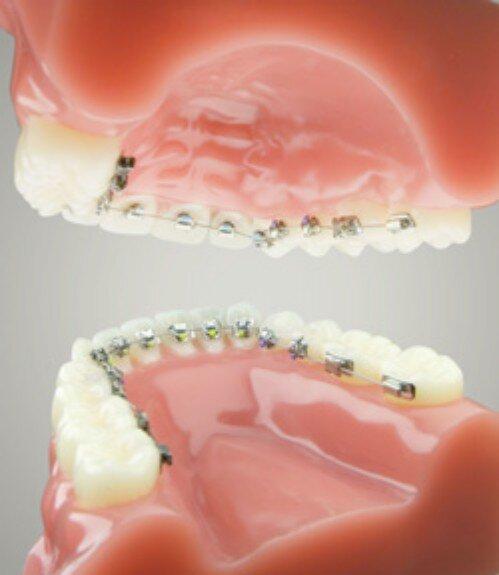 Niềng răng móm -1