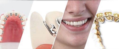 Niềng răng mặt lưỡi tại TP.HCM