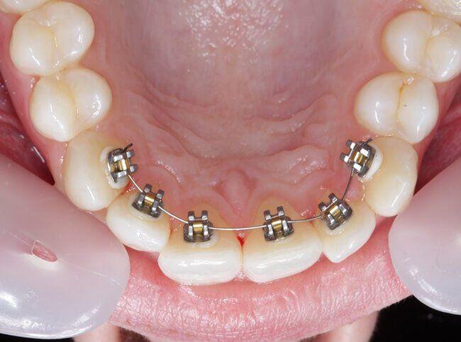 niềng răng mặt lưỡi