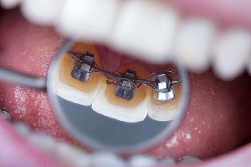 niềng răng mặt trong