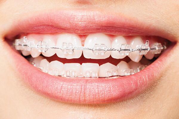 niềng răng mọc lệch