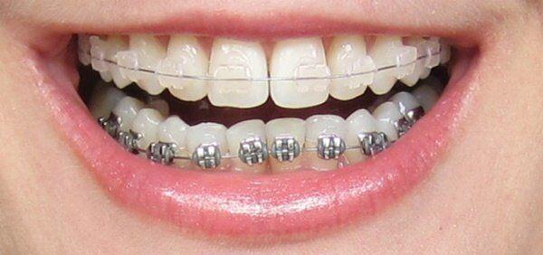 Niềng răng móm giá bao nhiêu tiền ?
