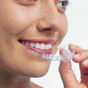 Niềng răng hô hàm trên -1