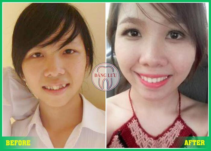 Niềng răng ở đâu tốt uy tín tại TPHCM – Sài Gòn